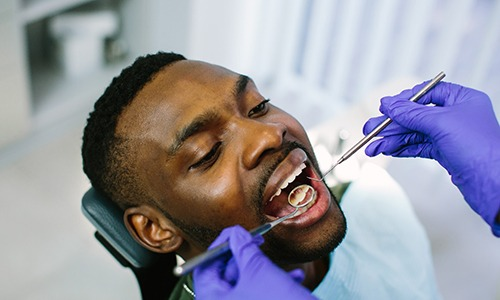 Closeup of male patient during dental checkup