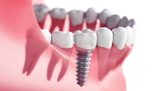 Animation of newly placed implant supported replacement tooth