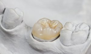 new dental crowns in Big Pine Key